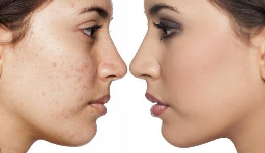 肌がボロボロで気になる……正しい習慣で美肌をめざそう!